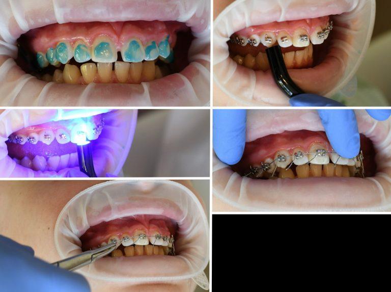 ortodontinis